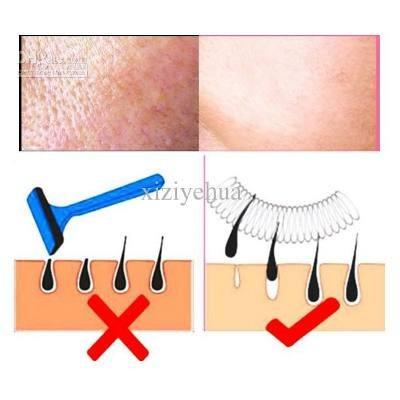 Epilady removedor de vello facial